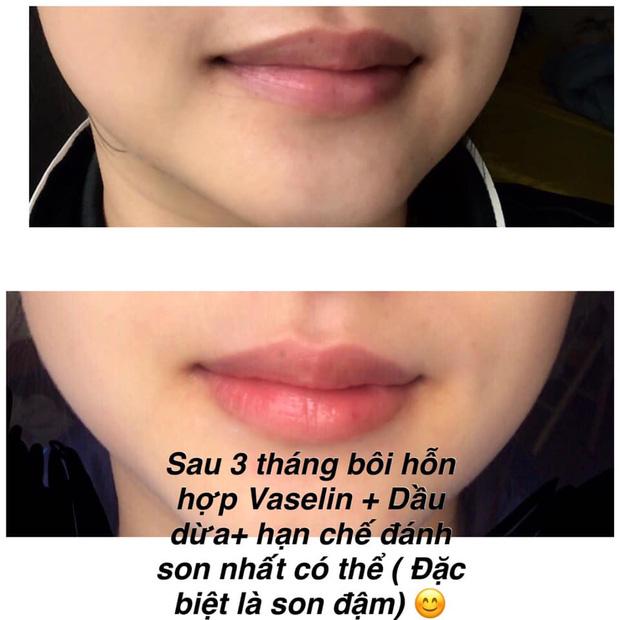 Tip trị thâm môi rẻ vô địch: Chỉ cần Vaseline và dầu dừa mà môi hồng hào, không makeup vẫn xinh tươi - Hình 1