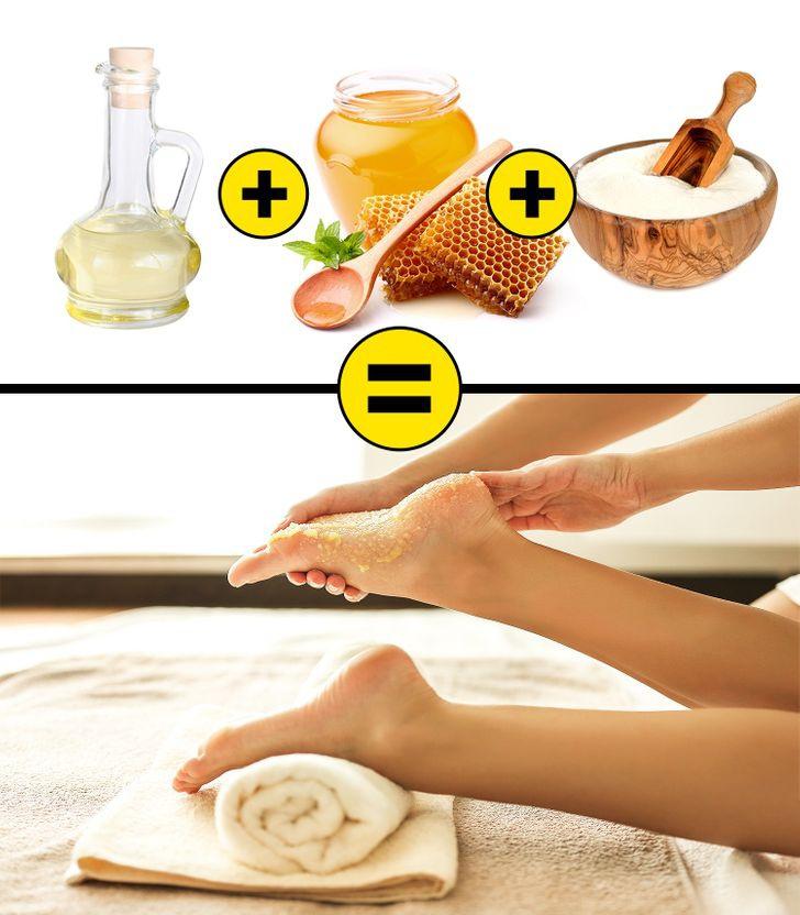 8 cách chữa nứt nẻ gót chân tại nhà - Hình 2