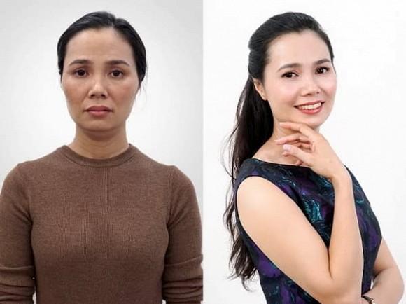 Trẻ hơn 10 tuổi nhờ căng chỉ Be Young tại JK Beauty Center - Hình 5