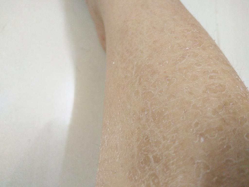 Cứ vào mùa lạnh là da khô ráp bong tróc không khác gì da rắn, chị em cần xem lại ngay mình đã tắm đúng cách chưa? - Hình 1