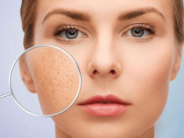 Áp dụng 1 trong 8 cách se khít lỗ chân lông da mặt vừa đơn giản vừa lành dưới đây, các nàng sẽ trở thành chị đẹp chỉ trong phút chốc - Hình 1