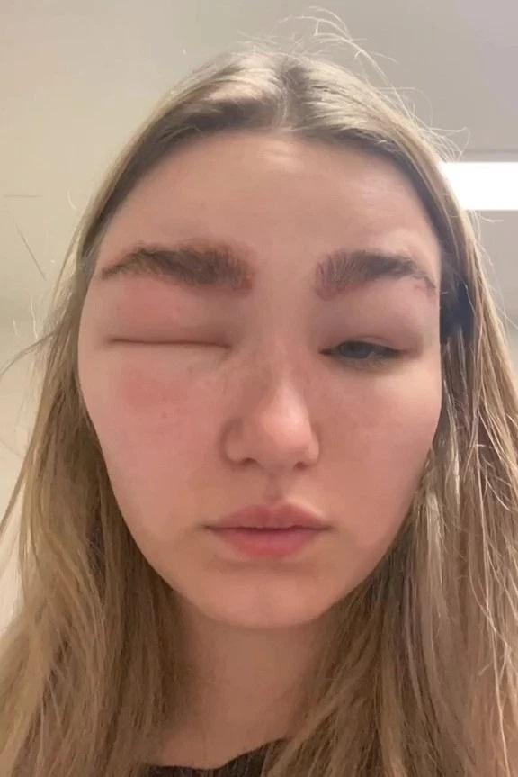 Cô gái bị sưng một bên mặt vì làm lông mày - Hình 2