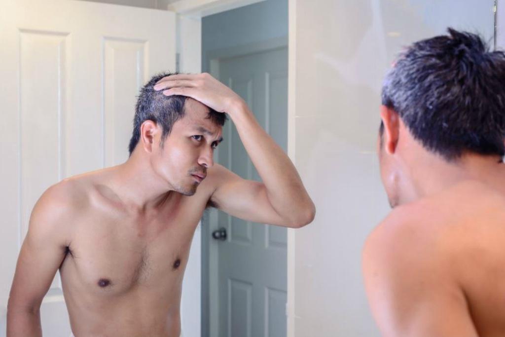 7 nguyên nhân khiến người trẻ có tóc bạc - Hình 4