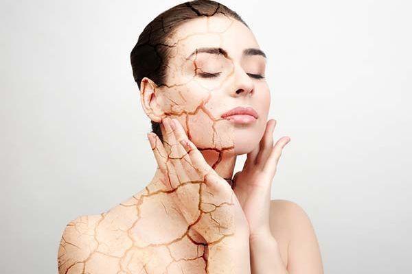 Biến da khô thành mướt mịn nhờ phương pháp hiệu quả này - Hình 1