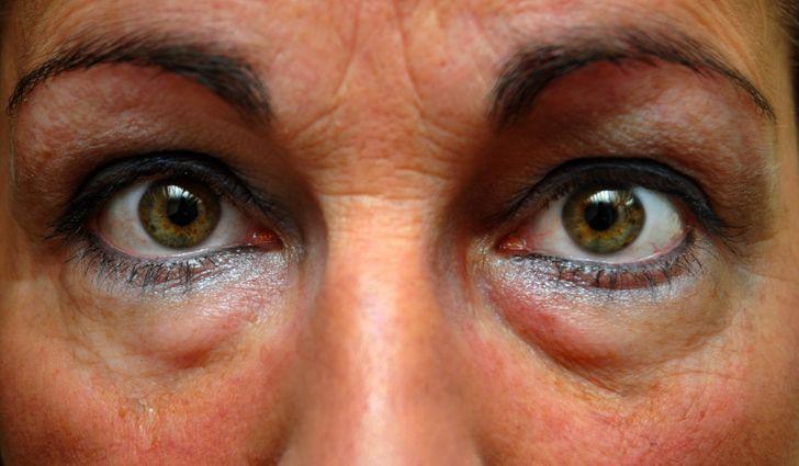 6 bước giúp bạn loại bỏ quầng thâm mắt hiệu quả cấp tốc - Hình 1