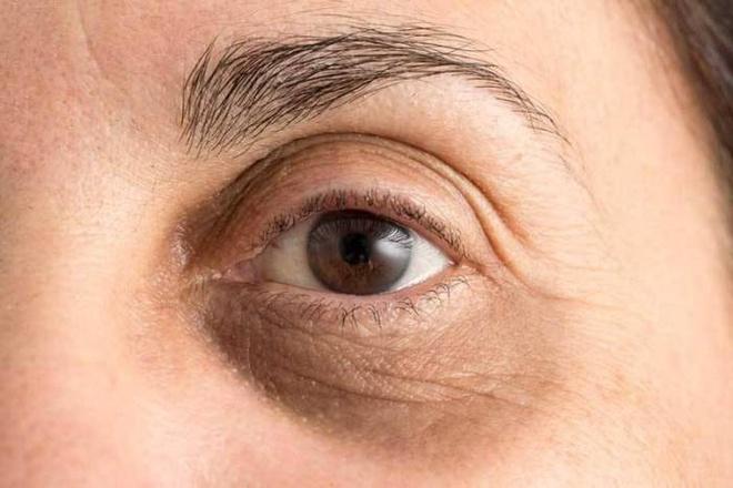 6 cách phòng tránh quầng thâm mắt - Hình 2