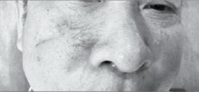Giãn mao mạch ảnh hưởng thẩm mỹ của da - Hình 1