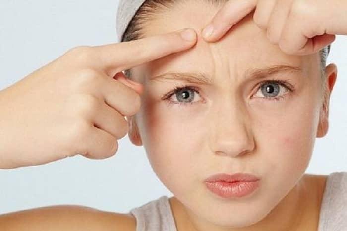 Nguyên tắc chăm sóc cải thiện da khô xỉn màu mùa đông hiệu quả - Hình 3
