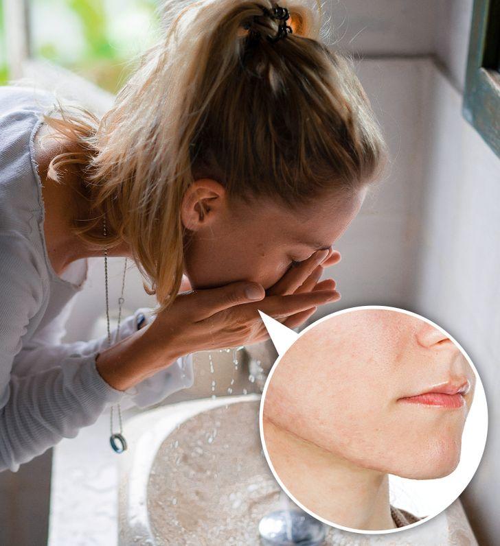 Rửa mặt bao lâu là đúng cách? - Hình 1