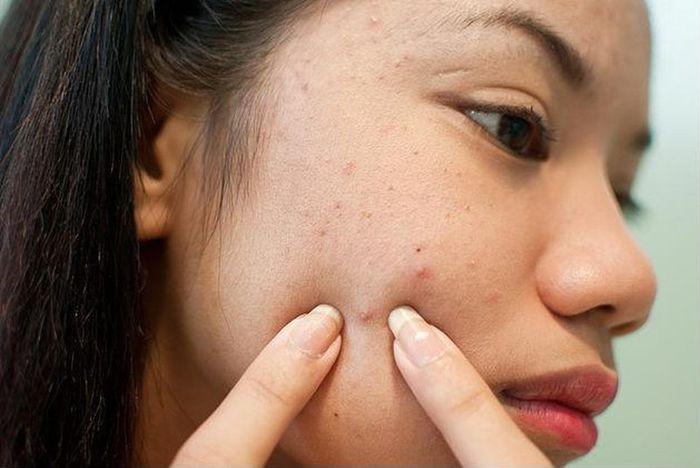 Sai lầm khiến lỗ chân lông ngày càng nở to mà nhiều người mắc phải - Hình 2