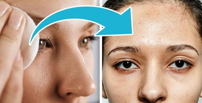 7 sản phẩm chăm sóc da có tác dụng phụ bạn nên chú ý - Hình 5