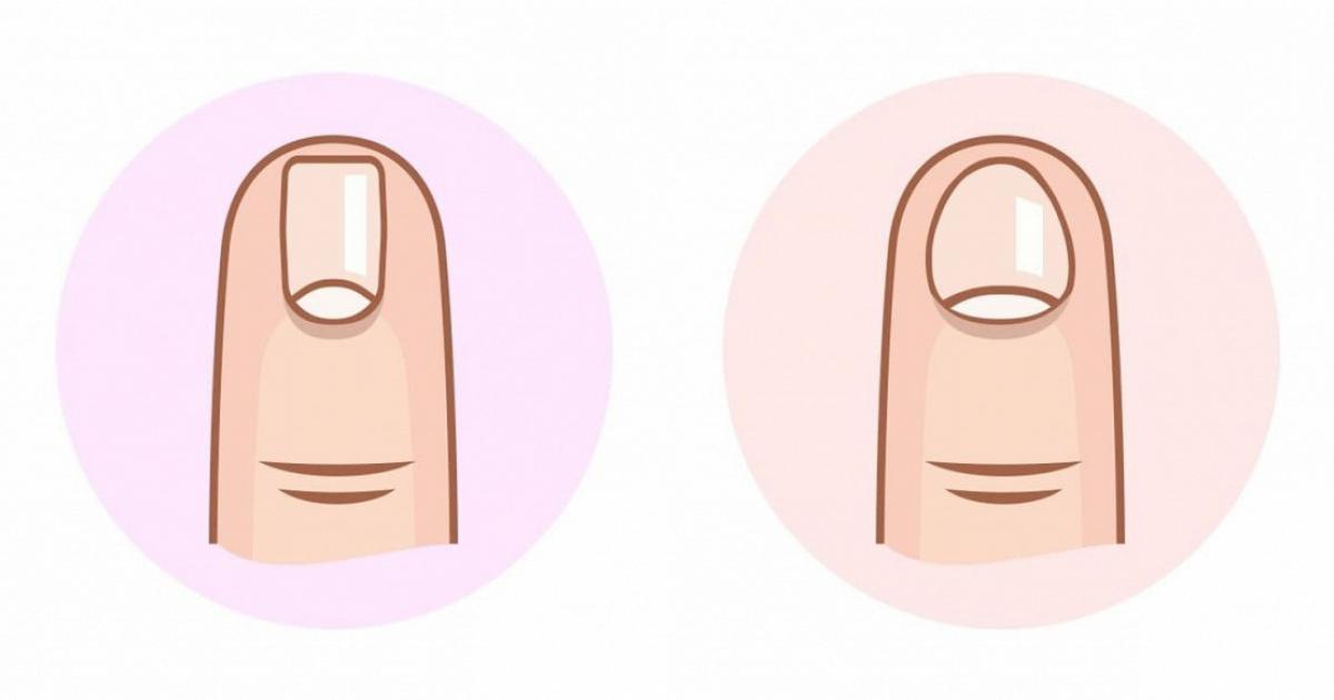 Dựa vào 6 hình dạng móng tay dưới đây có thể đoán bạn là người như thế nào