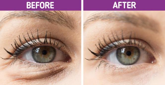 6 bước tiêu diệt mắt gấu trúc - Hình 6