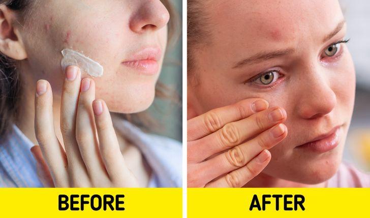 7 sản phẩm làm đẹp thông dụng có thể hủy hoại làn da của bạn - Hình 2