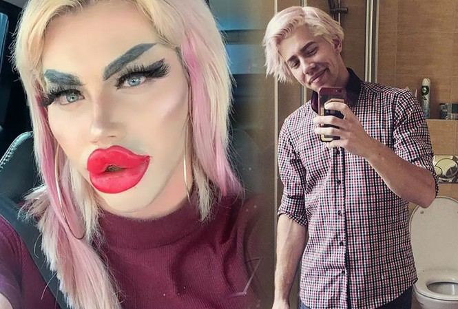 Chàng trai chật vật tìm bạn gái, chi 450 triệu đồng phẫu thuật giống búp bê Barbie - Hình 1