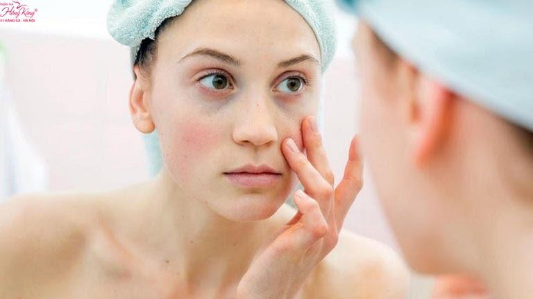 Chuyên gia da liễu lưu ý cách chăm sóc da sau khi trị nám bằng Laser - Hình 1