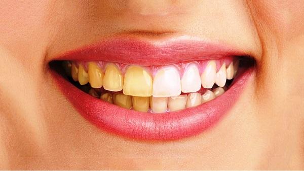 Xử lý răng ố vàng nhờ 4 cách đơn giản - Hình 1