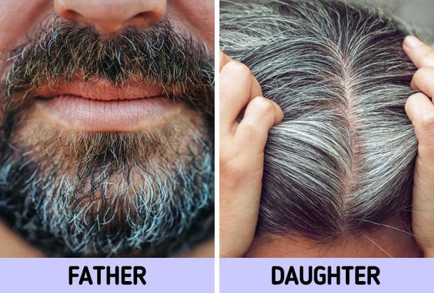 Không muốn tóc bạc sớm từ năm 20 tuổi, bạn nên chú ý tới 6 vấn đề là nguyên nhân điển hình gây ra tình trạng này - Hình 5