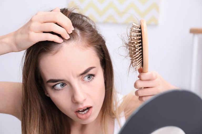 Trị tóc rụng như gái Pháp: Đầu tư một lọ tinh chất bởi tóc rụng cũng do lão hóa và chẳng chừa một ai - Hình 1