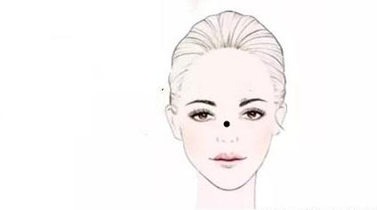 5 nốt ruồi xui xẻo trên cơ thể phụ nữ, cản trở đường tài lộc của gia đình - Hình 2