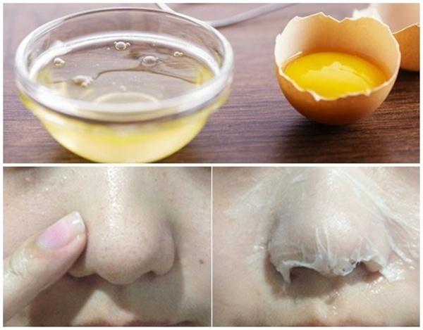 Cẩn trọng mối nguy hiểm khi dùng mặt nạ lòng trắng trứng - Hình 2