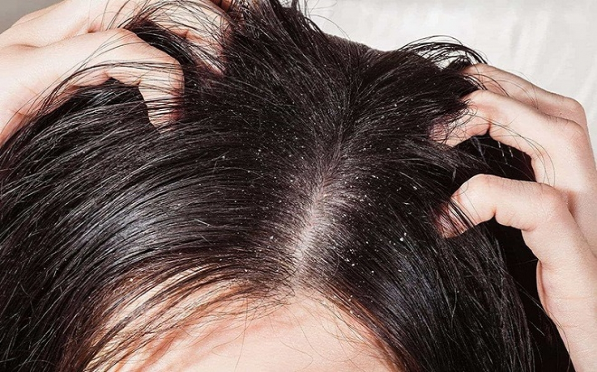 Những thói quen hàng ngày đang phá hủy mái tóc của bạn - Hình 4