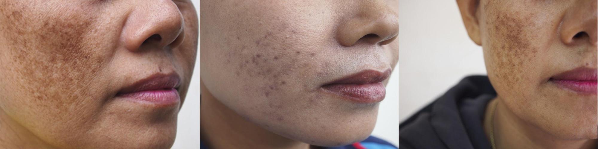 Hiểu đúng nám da để giảm nám an toàn và hiệu quả - Hình 2