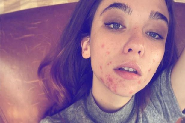 Nữ diễn viên Italy đăng ảnh mặt đầy mụn - Hình 1