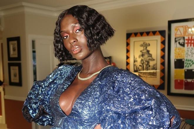 Nữ người mẫu dùng sữa của mình để trị mụn - Hình 1