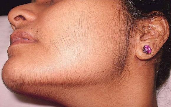 Bật mí 6 cách loại bỏ lông mặt tại nhà bằng nguyên liệu tự nhiên - Hình 2