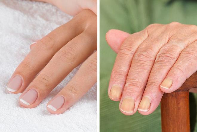 7 vùng trên cơ thể giúp bạn nhận biết dấu hiệu tuổi tác đã bắt đầu lộ rõ - Hình 3