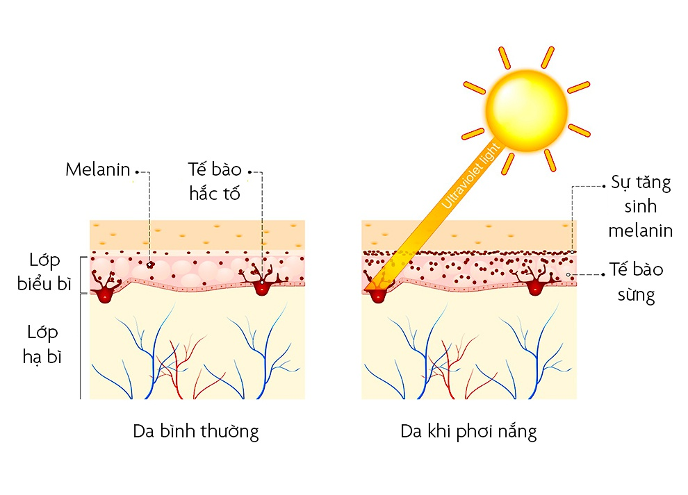 Nguyên nhân khiến da bạn nổi mụn, sớm có nếp nhăn - Hình 5
