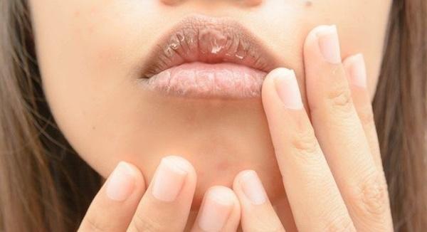 5 nguyên nhân gây nứt nẻ môi và cách khắc phục tại nhà hiệu quả - Hình 1