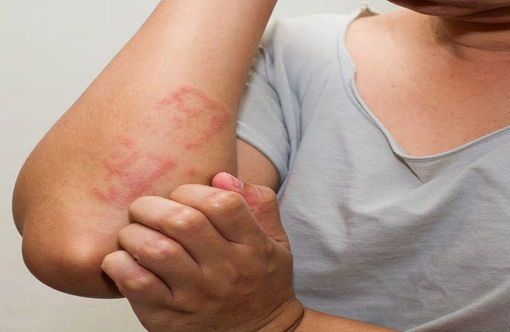 Người phụ nữ l��m việc này 2 lần mỗi ngày để giữ ấm vào mùa đông, hậu quả phải gánh chịu là mắc bệnh của người già - Hình 2