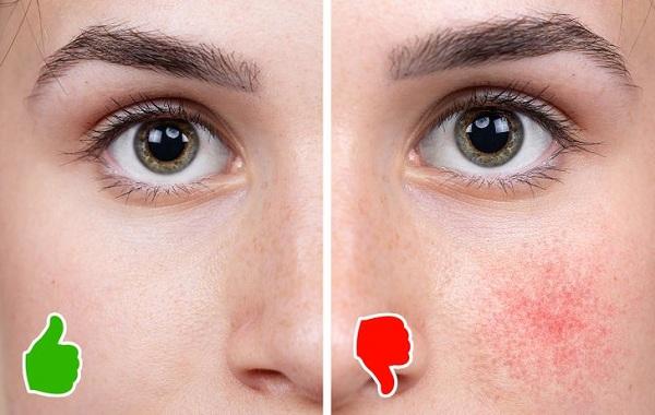 Điều gì xảy ra với làn da nếu bỏ hoàn toàn cà phê? - Hình 4