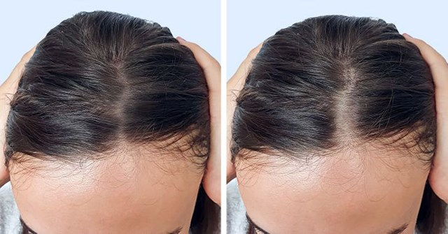 9 thói quen hàng ngày khiến tóc bạn mỏng đi - Hình 1
