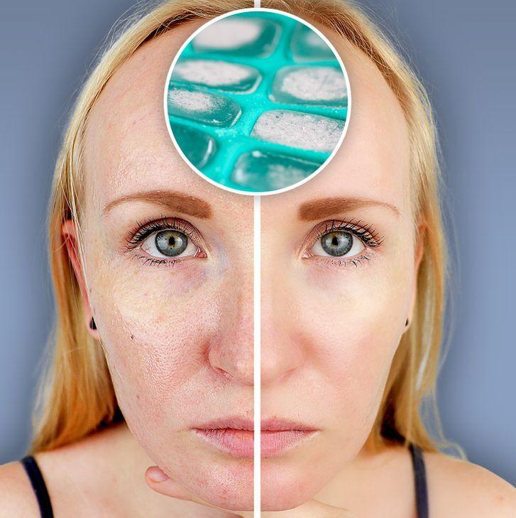 6 lợi ích cho làn da khi bạn chườm đá lạnh mỗi ngày - Hình 1
