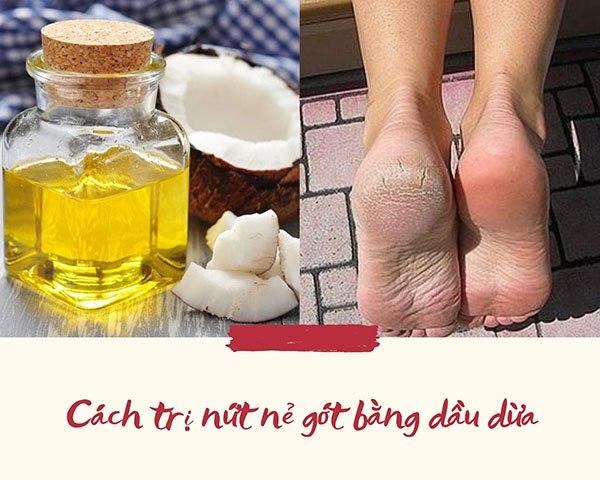Lộ bàn chân sần sùi khi mang giày hở gót, áp dụng ngay cách trị nứt nẻ gót chân này - Hình 5