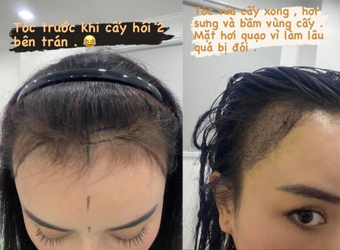 Phạm Băng Băng phiên bản Việt chi cả trăm triệu đồng chữa hói - Hình 2