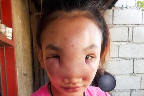 Thiếu nữ 17 tuổi nguy cơ bị mù sau khi nặn mụn trên mũi - Hình 2
