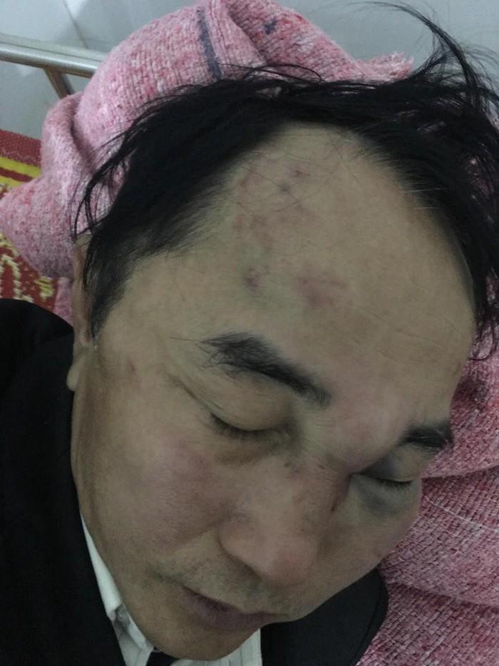 Nam bác sĩ bị đánh hội đồng do phản ứng việc xe đậu trước cổng nhà - Hình 1