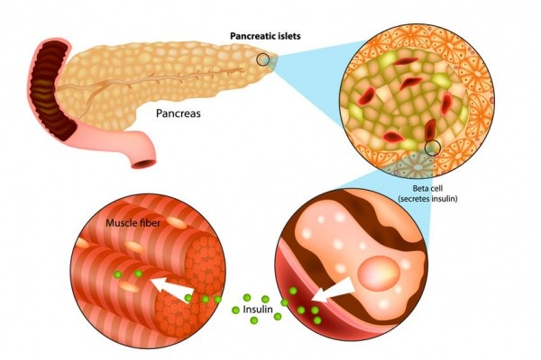 Tìm ra nguyên nhân di truyền của bệnh tiểu đường - Hình 1