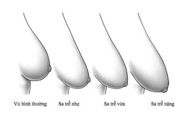 U50 vẫn sở hữu khuôn ngực căng tròn, săn chắc nhờ những cách đơn giản áp dụng mỗi ngày - Hình 1