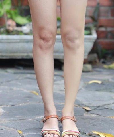 Cách che sẹo ở chân khi mặc váy đơn giản mang lại hiệu quả bất ngờ - Hình 4