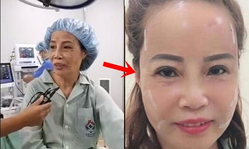 Chị chị em em - cô dâu 62 tuổi dẫn cô dâu 65 tuổi đi làm răng sứ, cải thiện nhan sắc - Hình 8