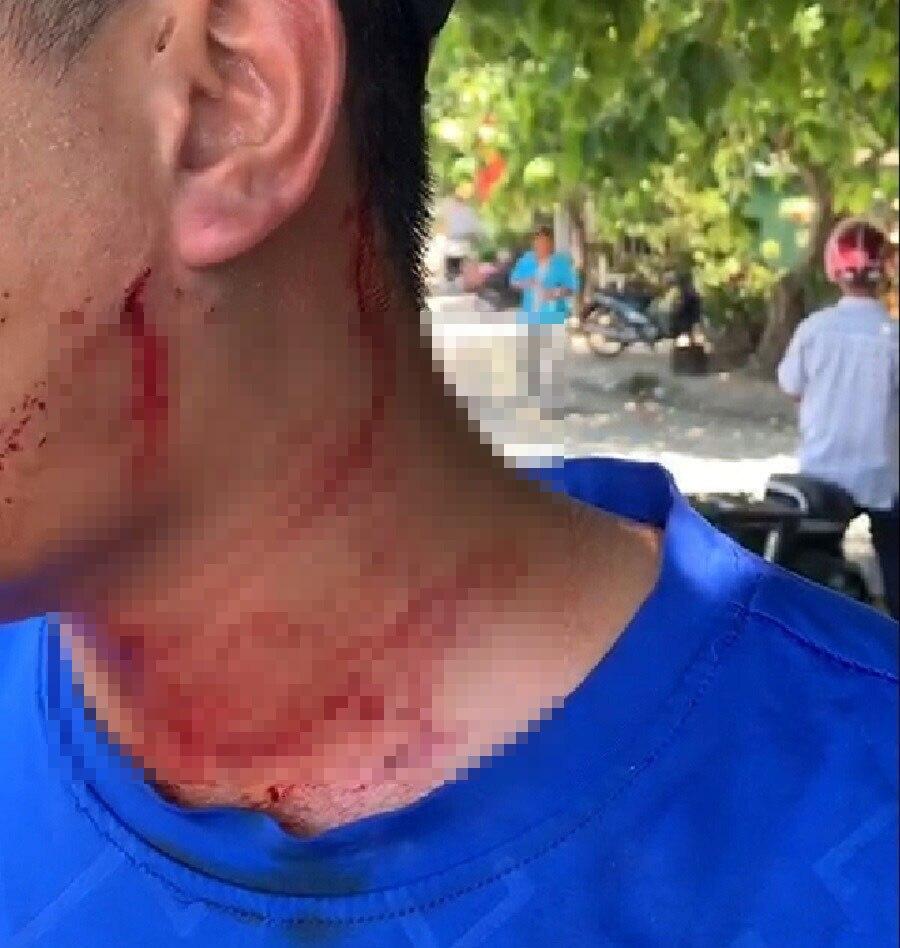 Mục kích xe trá hình, phụ xe buýt Huế - Đà Nẵng bị 3 người đánh - Hình 1