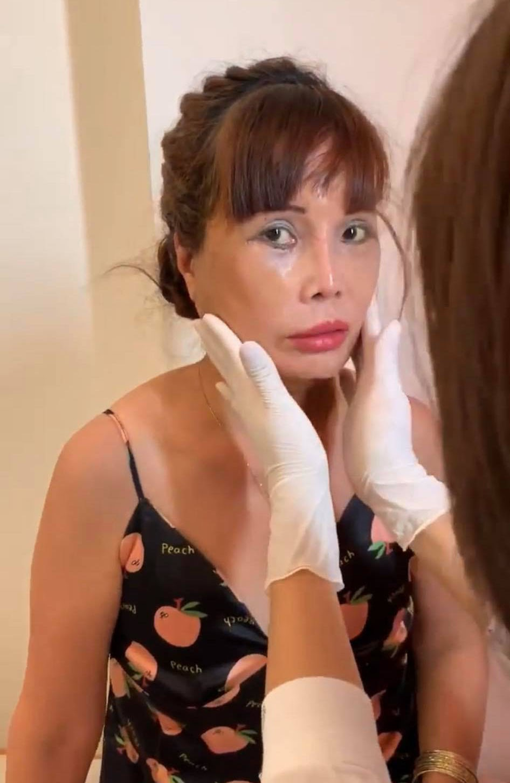 Cận cảnh nhan sắc cô dâu 62 tuổi sau 4 ngày thẩm mỹ: Bị méo miệng vẫn muốn nâng cấp vòng một - Hình 3