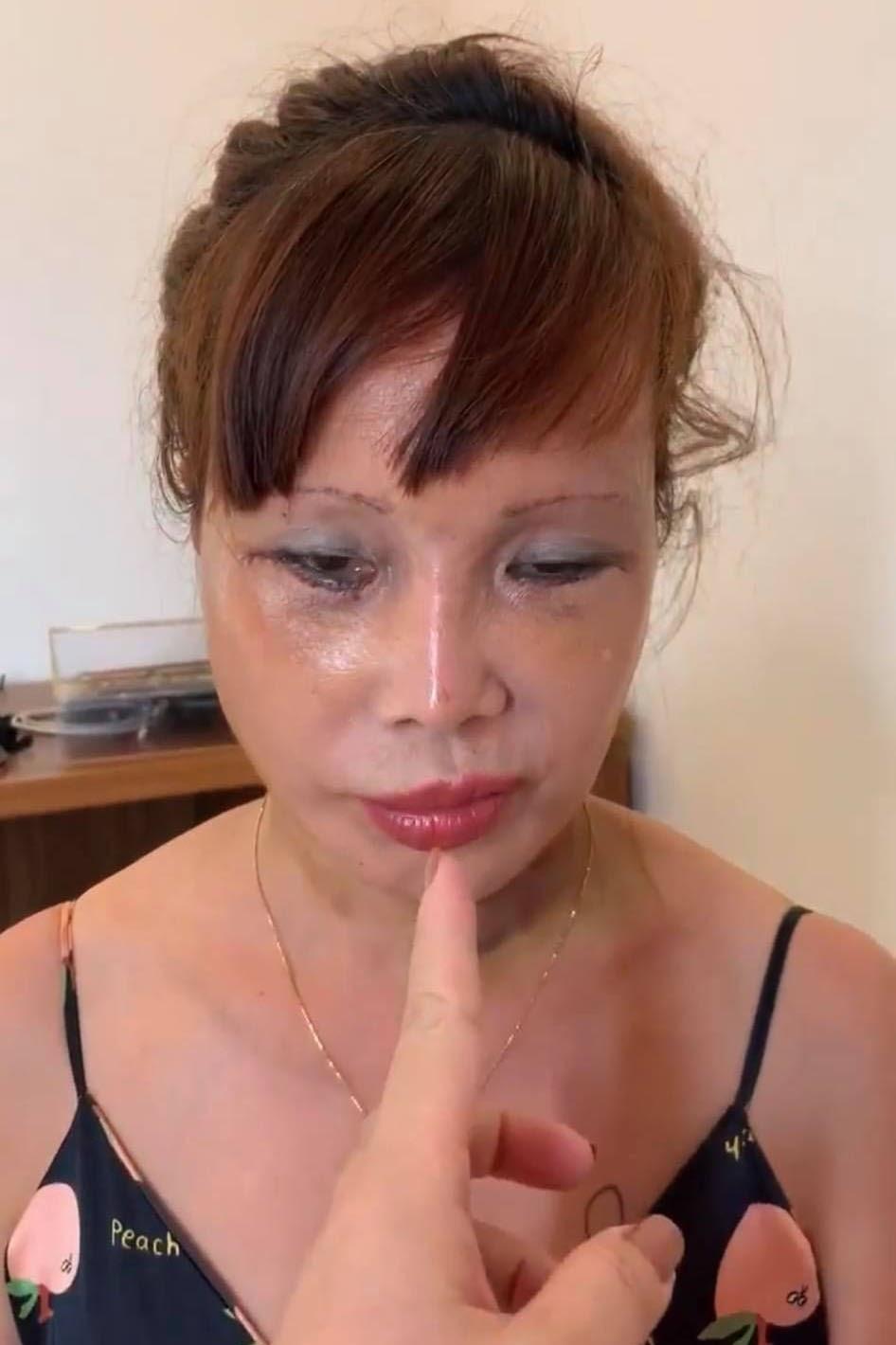 Cận cảnh nhan sắc cô dâu 62 tuổi sau 4 ngày thẩm mỹ: Bị méo miệng vẫn muốn nâng cấp vòng một - Hình 5