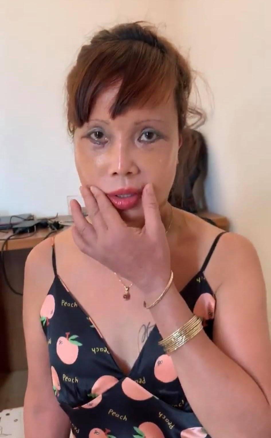 Cận cảnh nhan sắc cô dâu 62 tuổi sau 4 ngày thẩm mỹ: Bị méo miệng vẫn muốn nâng cấp vòng một - Hình 8