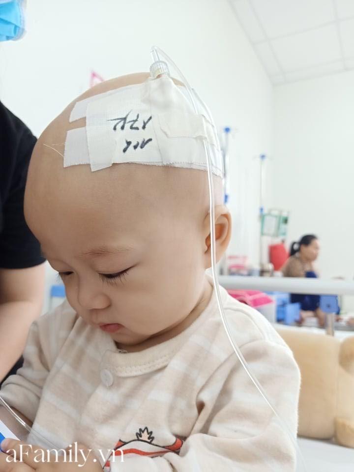 """Em bé 14 tháng tuổi mắc liền 2 bệnh ung thư: """"Gương mặt tươi rói, nụ cười lém lỉnh như thiên thần""""chất đầy đau đớn - Hình 9"""